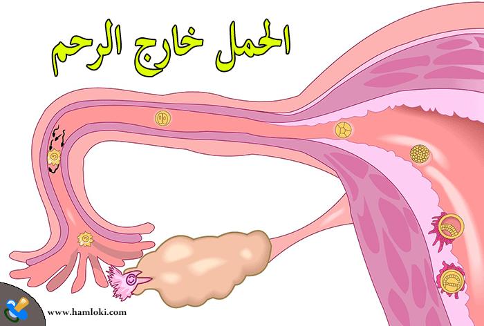 تجربتي مع الحمل خارج الرحم واعراضه وأسبابها وطرق علاج الحمل خارج الرحم